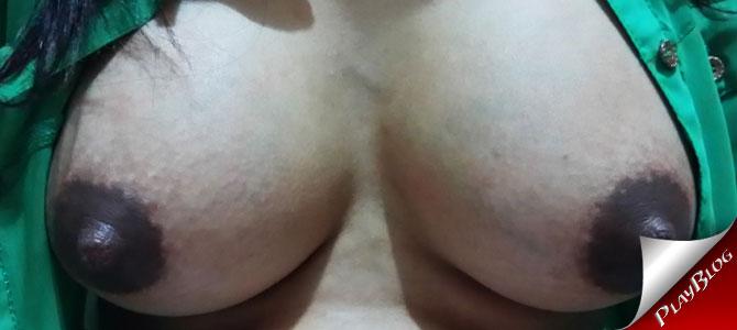 Mamilos inchados da minha esposa