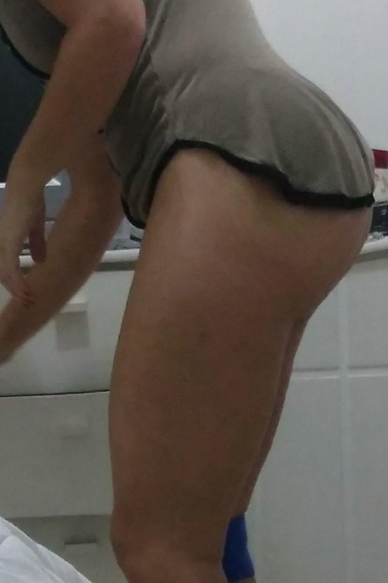 CasalNovax
